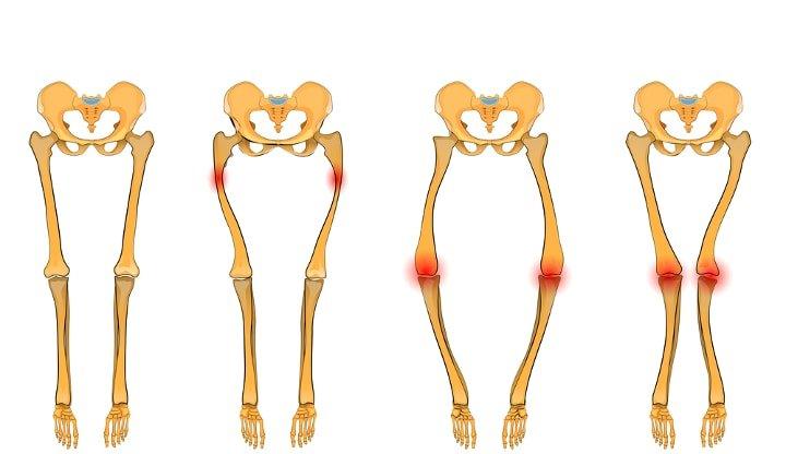 Wkładki ortopedyczne wskazania i zalety do stosowania