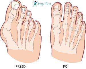 Haluks przed i po operacji