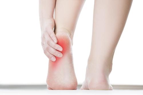 Ból pięty przy chodzeniu, a zapalenie rozcięgna podeszwowego