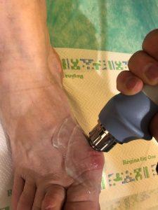 leczenie haluksów fala uderzeniowa